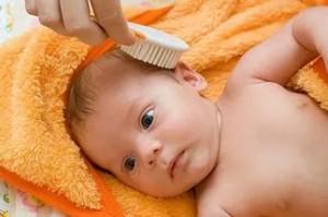 Как вычесать корочку на голове у младенца